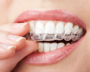 affordable invisalign near me coral springs fl