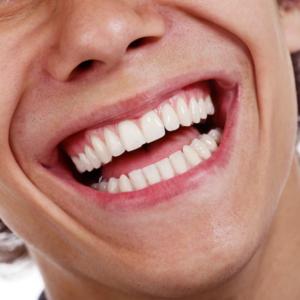 invisalign vs. smile direct club coral springs fl