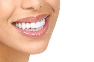 invisalign vs. smile direct club coral springs fl