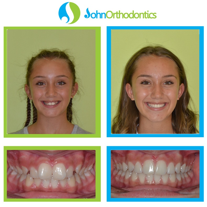 best orthodontist coral springs fl