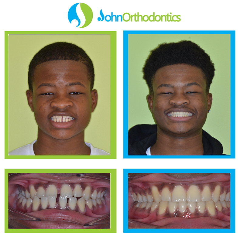 best orthodontist parkland fl